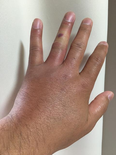 ブヨに刺された指から晴れた手の甲